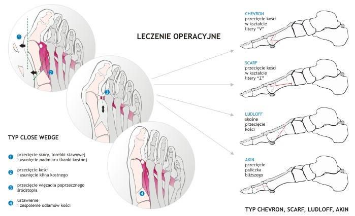 Leczenie operacyjne haluksa to inwazyjny sposób na pozbycie się problemu palucha koślawego