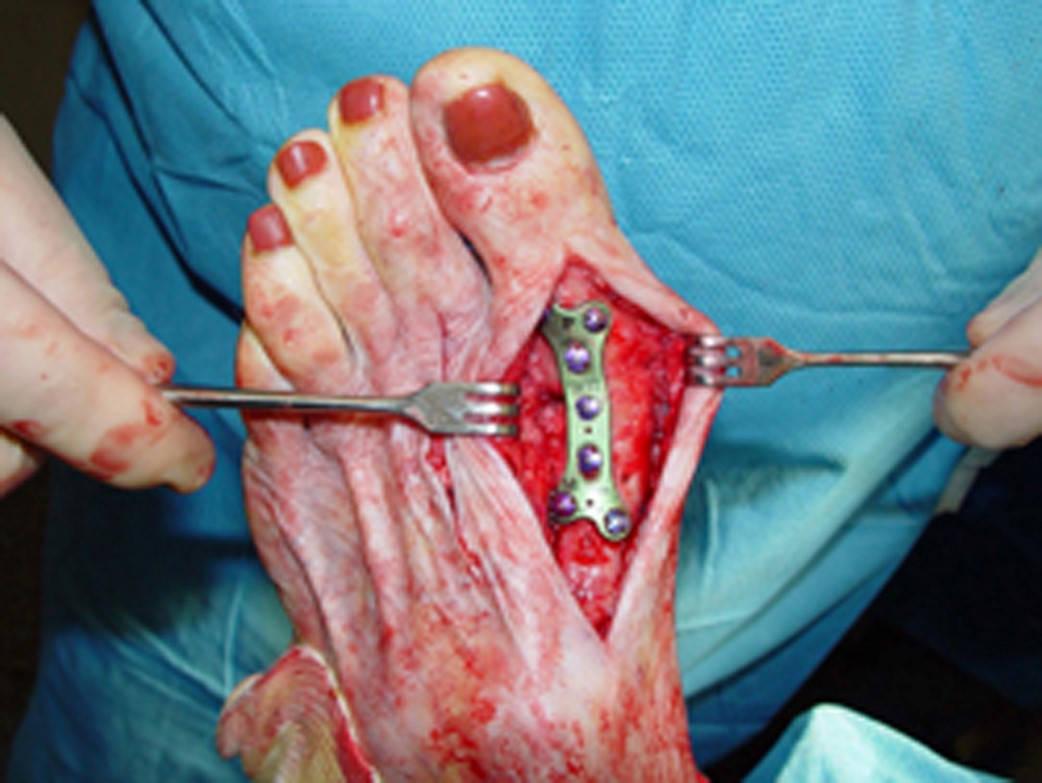 Wstawiona metalowa zakładka podczas operacji na haluxa
