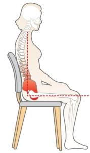 Zdjęcie przedstawia nieprawidłową pozycję podczas siedzenia oraz ucisk na miednicę