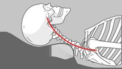 Na schemacie dokładnie widać jak wygląda ułożenie kręgosłupa szyjnego na nieprawidłowej poduszce