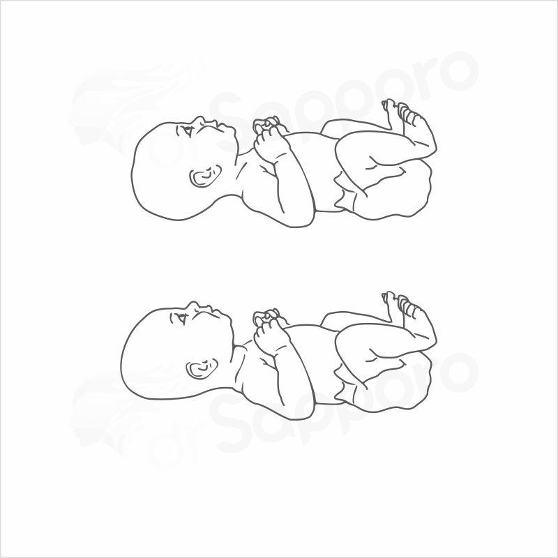 Obraz przedstawia ukształtowanie główki noworodka