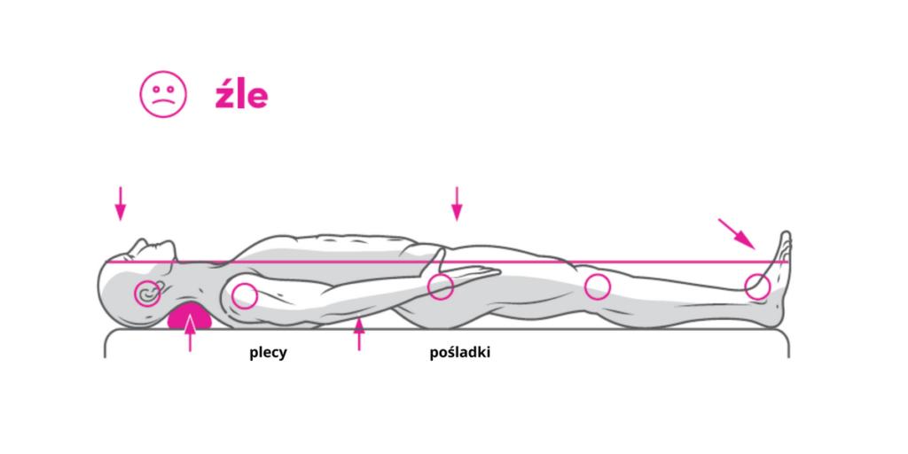 Niewłaściwa pozycja kręgosłupa gdy linia plecy-pośladki jest powyżej tej właściwej. Podłożenie pod szyję np. poduszki spowoduje w przyszłości problemy zdrowotne